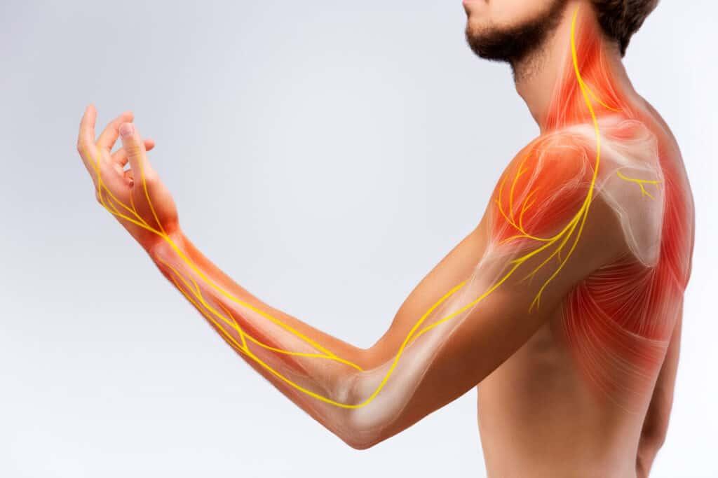 Peripheral nerve stimulation treatment